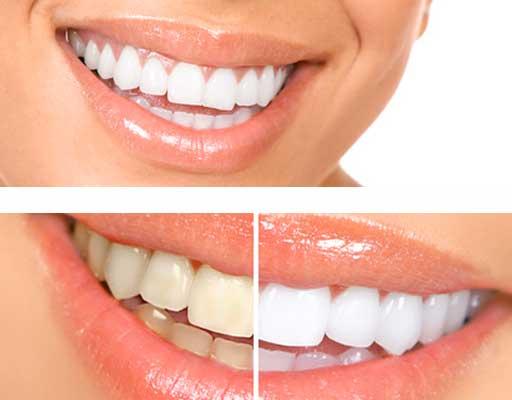 Denti bianchissimi e per sempre la ceramica è la risposta
